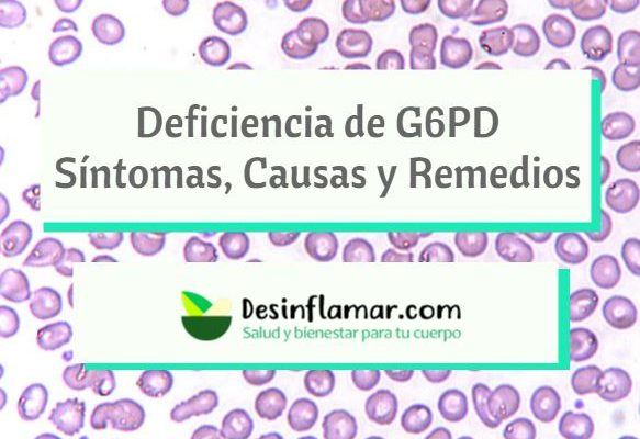 Deficiencia de G6PD remedios caseros